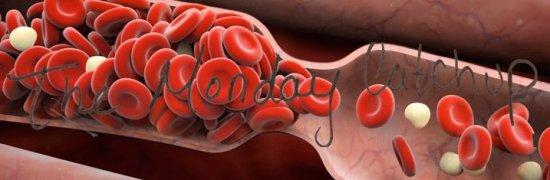 blood-clots.jpg